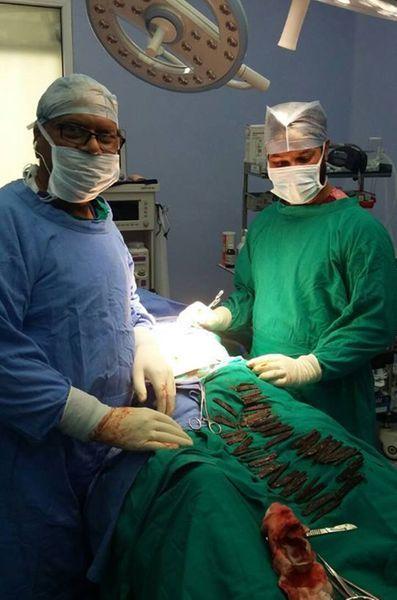 Des chirurgiens indiens ont retiré 40 couteaux de l'estomac d'un homme de 42 ans.