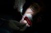 "Le ""dentiste de l'horreur"" sera jugé en France"