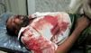 Veillée macabre au Yémen