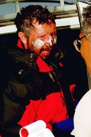 Beck Weathers quelques heures après son sauvetage en mai 1996.