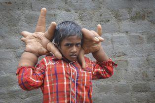 Le combat de Kaleem, 8 ans, pour une vie normale