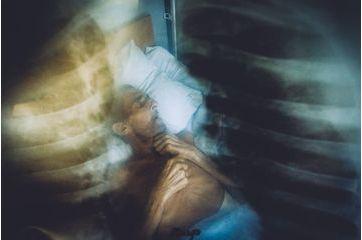 La tuberculose, fléau Ukrainien. Par Maxim Dondyuk