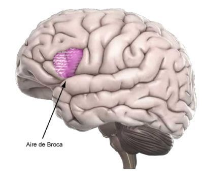 aire-broca-lesee