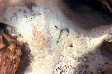 Cicatrice HenriIV-