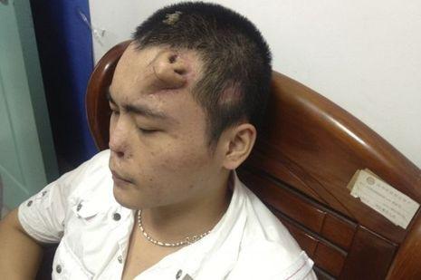Xiaolian a depuis été greffé.