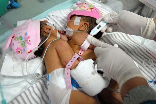 Les petites siamoises partagent un cœur