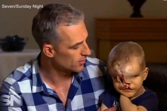 Yahya, le petit garçon sans visage