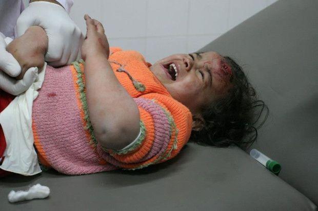 <strong>Rafah, Gaza, 17 janvier 2009.</strong><emphasize>Nedjma (Etoile), une fillette blessée à la tête est opérée, sans anesthésiant et sous les bombes, dans l'hôpital de Rafah pendant l'offensie israélienne «Plomb durci» contre le Hamas.</emphasize>
