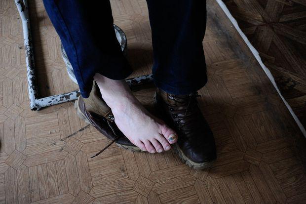 Le pied d'Andreï, brutalisé brutalisé pendant sa détention aux mains des pro-Kiev.