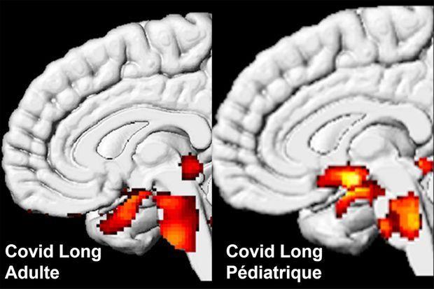 Sur ces images réalisées par TEP métabolique dans le service du Pr Eric Guedj, des hypométabolismes cérébraux (régions limbiques et tronc cérébral) sont retrouvés dans le Covid long de l'adulte et de l'enfant.
