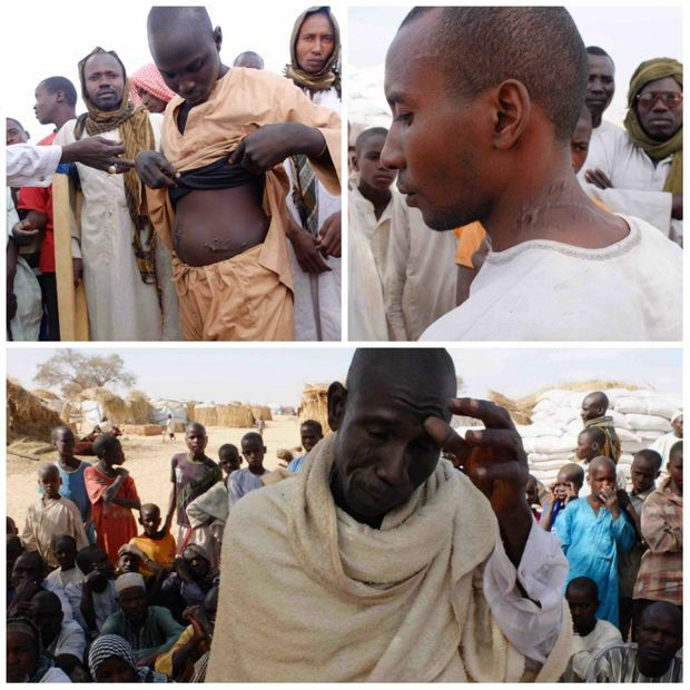 Deux habitants du village d'Assaga au Nigéria montrent leurs blessures infligées par Boko Haram. En bas, le chef du village désoeuvré. L'attaque survenue en juin dernier a provoqué l'exode de 3000 personnes.