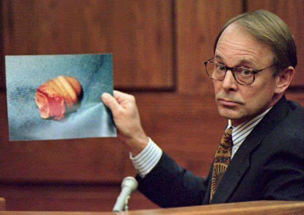 Le docteur James T. Sehn montre une photo du pénis coupé de John Wayne Bobbitt, au deuxième jour du procès de Lorena Bobbitt, le 11 janvier 1994. Le docteur Sehn et son équipe de chirurgiens ont rattaché le pénis lors d'une opération de plus de neuf heures.