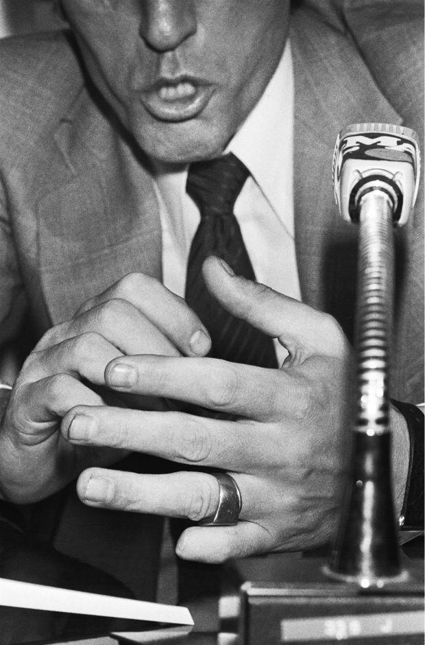 La main gauche, amputée de l'auriculaire, du baron Empain lors de sa première conférence de presse, le 7 septembre 1978.