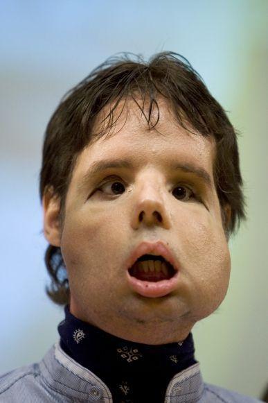 Oscar greffe totale visage portrait-