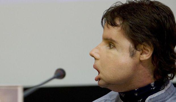 Oscar greffe totale visage profil-