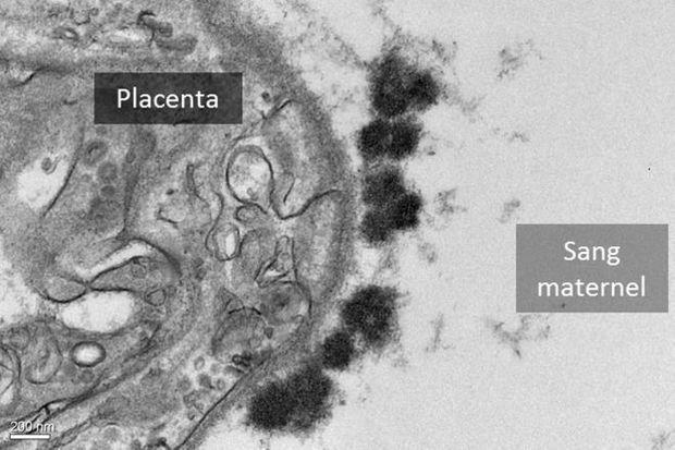 Les taches noires, qui se trouvent dans la surface d'échange entre la mère et le foetus, sont des accumulations de nanoparticules.