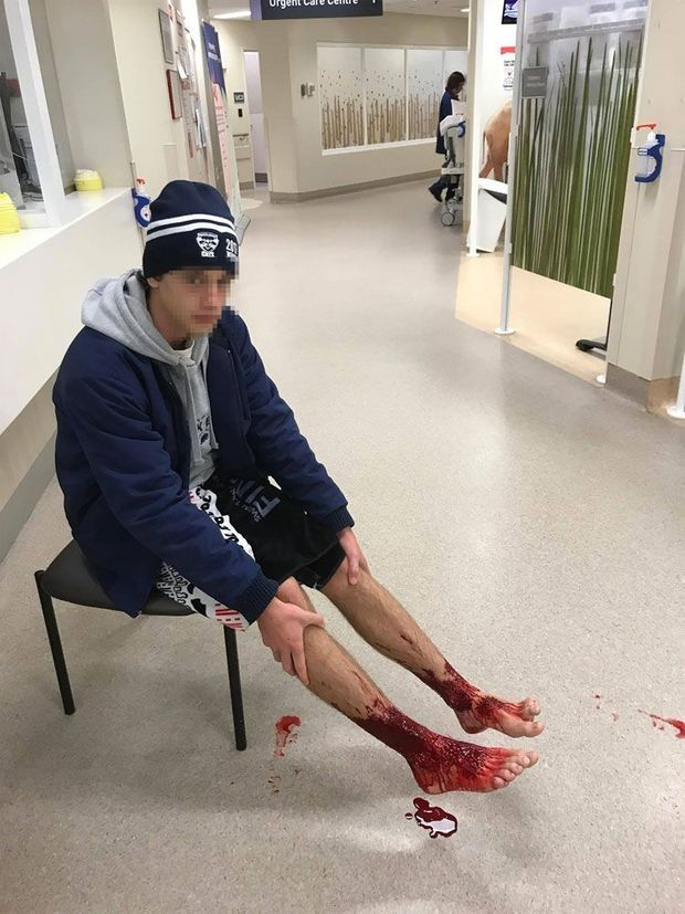 La photo prise par le père de la victime montre l'étendue des blessures de Sam Kanizay.