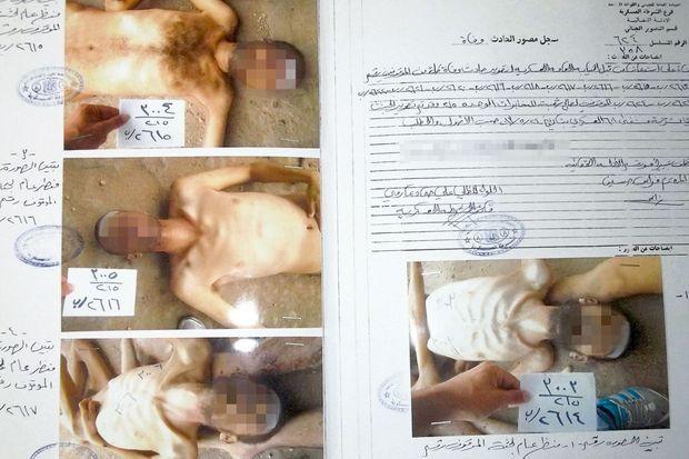 Photos d'un cadavre portant des marques de tortures commises par le régime syrien, dans le « dossier César », du nom de code d'un photographe de la police qui a fait défection en emportant ses clichés.