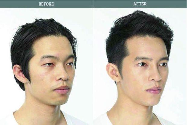 Les Sud-coréens détiennent le record mondial de chirurgie esthétiques.