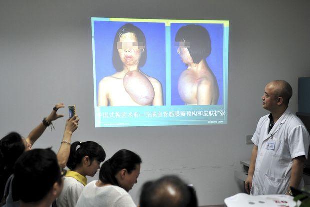 Le 11 octobre 2013, les médecins présentaient aux journalistes l'histoire de Xu Jianmei.