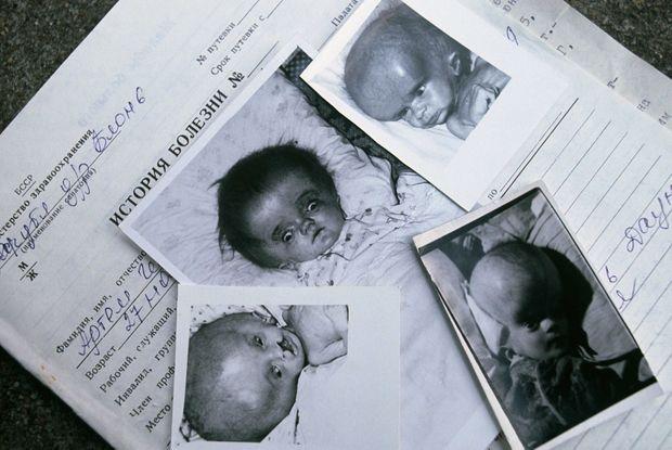 """Quatre enfants, nés à Blon près de Minsk. Tous décédés. « Pour obtenir ces documents, Wojtek Laski a dû se passer d'autorisation officielle. Parfois, les infirmières et les surveillantes, qui lui faisaient rencontrer les enfants, pleuraient en lui disant : """"Montrez-les. Il faut que tout le monde sache. Enfin…"""" » - Paris Match n°2137, 10 mai 1990"""
