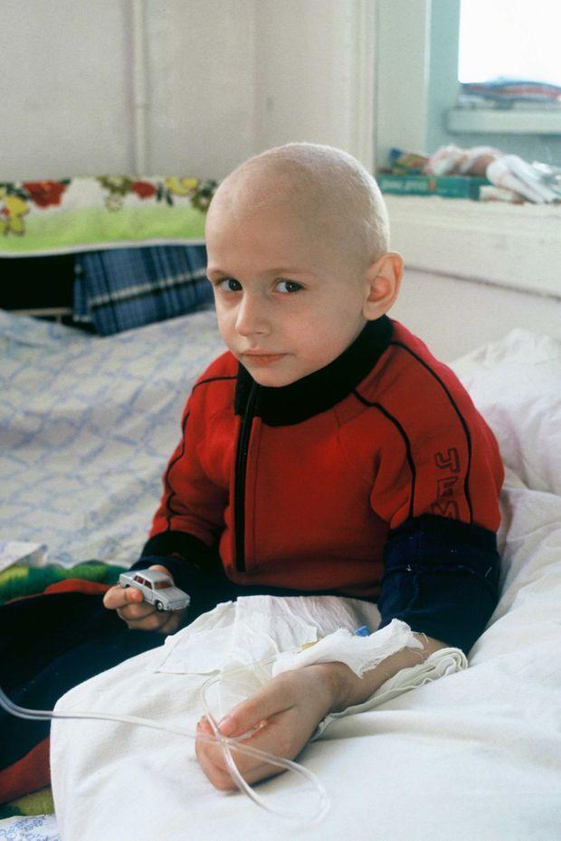 Un enfant de six ans atteint d'une leucémie, en chimiothérapie à Minsk, en avril 1990.