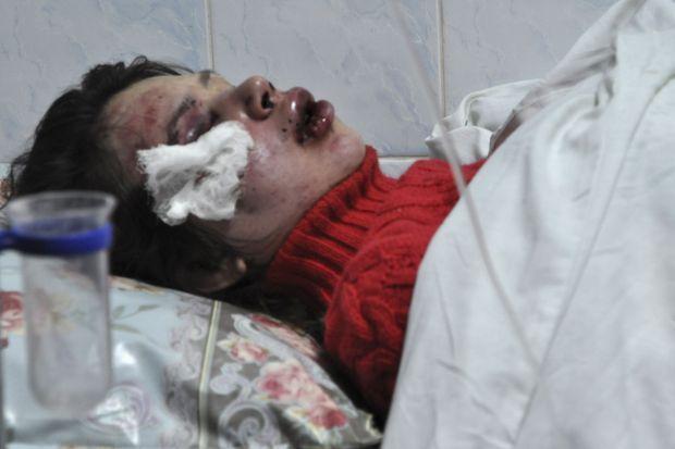 Photographiée à l'hôpital, Tetyana Chornovil est méconnaissable.