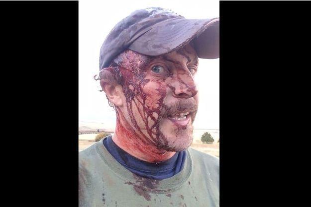 Todd Orr ensanglanté après la double attaque qu'il a subi