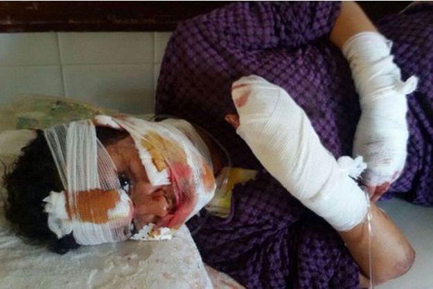 Khaloua a été tabassée par son mari dont elle voulait divorcer.