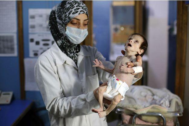 Un enfant malnutri de la Ghouta, en Syrie, le 21 octobre 2017.