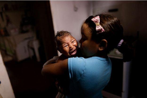 Au Brésil, un bébé atteint de microcéphalie dans les bras de sa sœur.