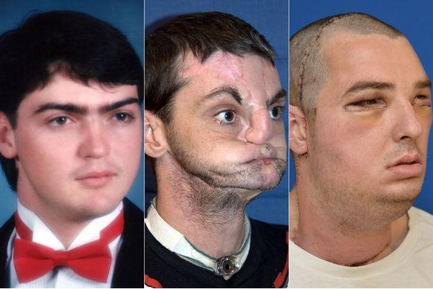 Richard Norris, avant et après son opération.