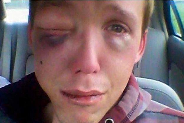 Devin a posté cette photo de lui après l'agression sur Facebook.