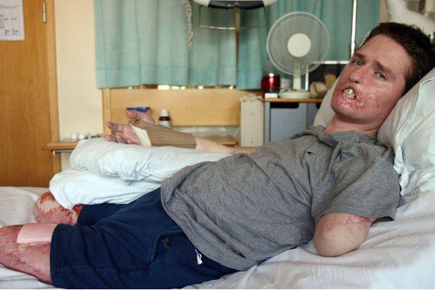 Alex Lewis sur son lit d'hôpital.