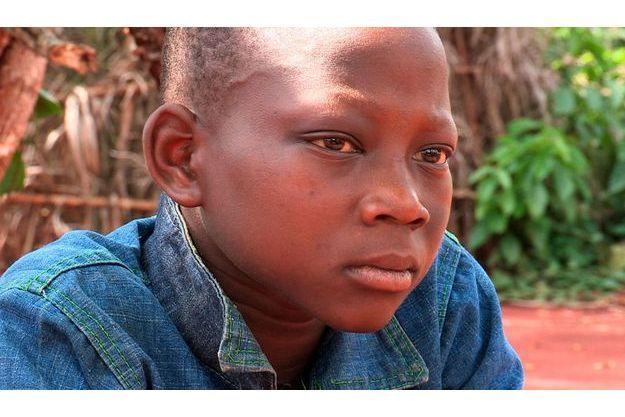 Pascal, jeune victime de Joseph Kony, le criminel de guerre ougandais.