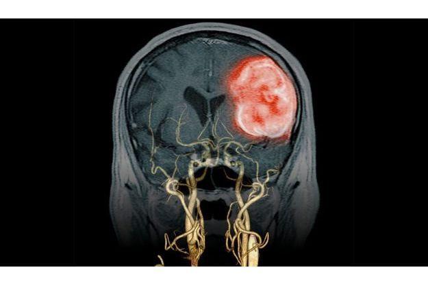 Un scanner des vaisseaux  du cou associé à une IRM du crâne montrant un AVC hémorragique (en rouge). Image du Dr Didier Buthiau.