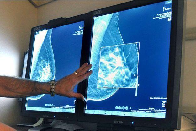 L'Agence de sécurité du médicament (ANSM)) maintient sa recommandation de ne pas utiliser le docétaxel dans les cancers du sein localisés opérables.