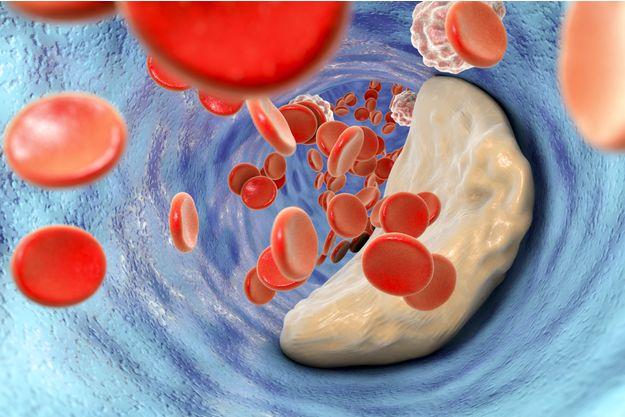 LDL-cholestérol : responsable de l'athérosclérose