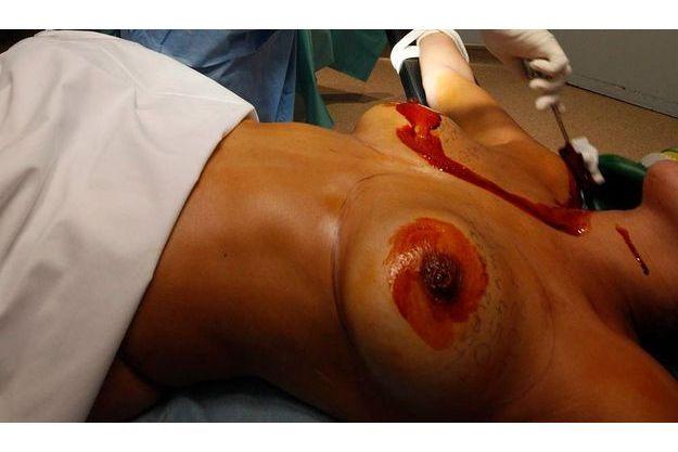 Préparation à une explantation d'implants PIP.
