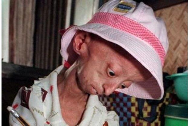 Jeune Vietnamienne âgée de 13 ans atteinte de la progeria (archives).