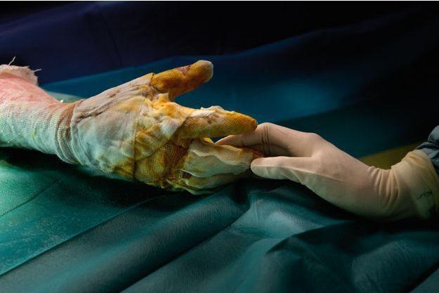 Ce patient vient de recevoir une greffe de peau sur les mains. Sauver les mains… c'est sauver l'autonomie de l'être en reconstruction.
