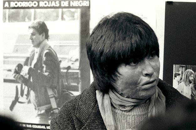Carmen Gloria Quintana en juillet 1987, un an après son agression.