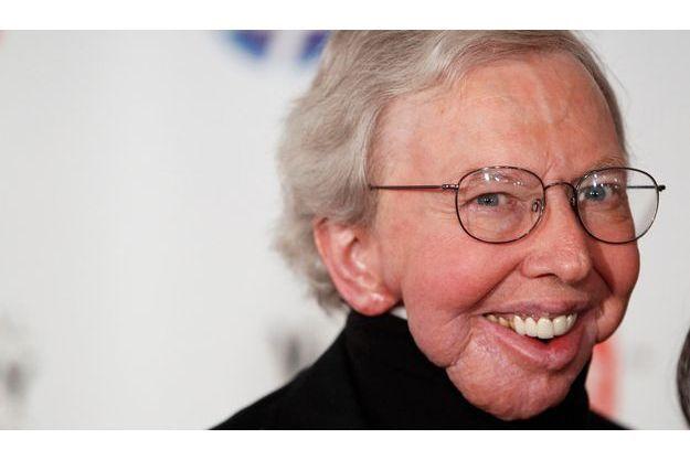 Roger Ebert en 2010, après qu'il a perdu une large partie de sa mâchoire inférieure des suites d'un cancer.