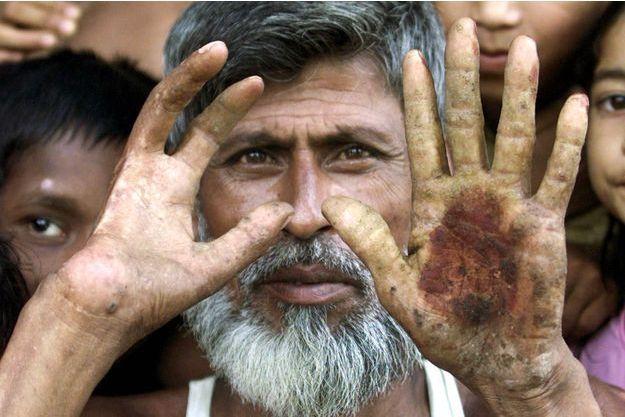 Un villageois bangladais empoisonné par l'arsenic montre les symptômes qui lui provoque sa maladie