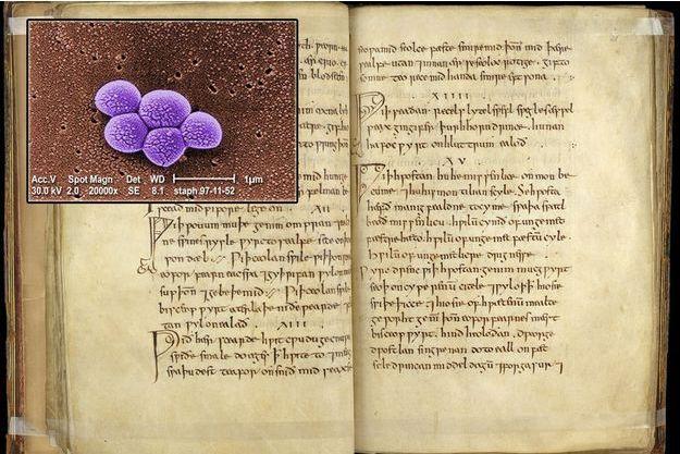Une page du Bald's Leechbook avec en médaillon la bactérie du staphylocoque doré résistant à la méthicilline.