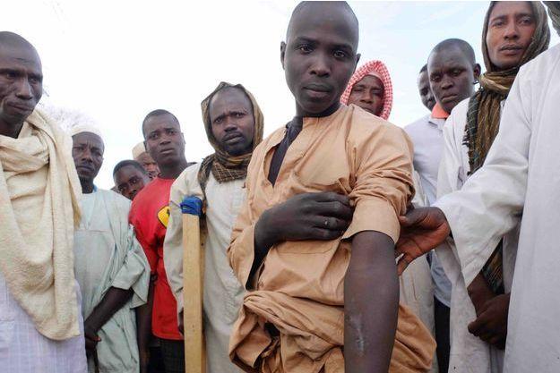 Dans un camp de réfugié à la sortie de Diffa au Niger, Malanderi nous montre sa cicatrice au bras perforé par une balle, le 13 février 2016
