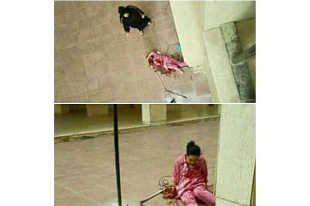 Les photos prises par une proche de Melirose Balagosa après qu'elle a été jetée par la fenêtre par son patron le 6 octobre au Koweït.