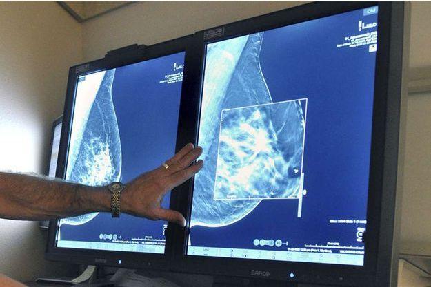 Cancer du sein, autisme... L'aluminium sera-t-il un jour mis en cause comme l'amiante?