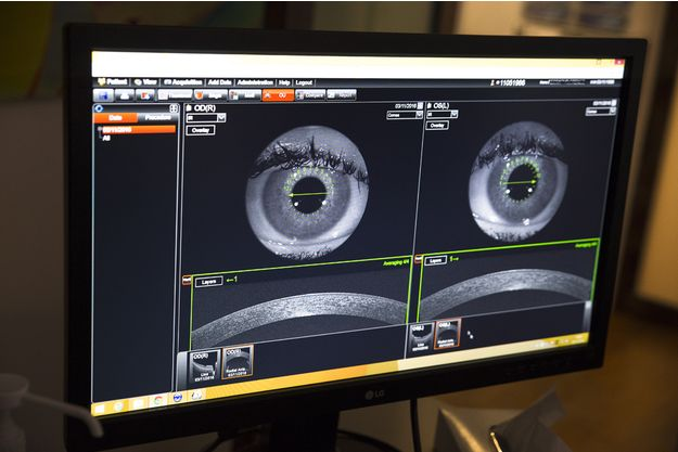 L'œil bionique : un immense espoir pour les malvoyants (Photo d'illustration)
