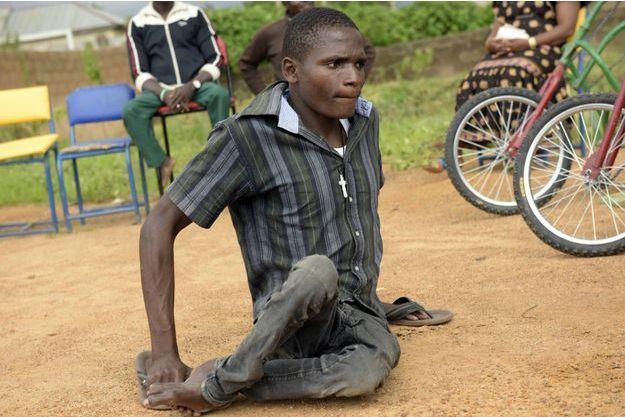Un malade de la polio photographié dans un centre pour handicapés à Jos, en juillet 2016. Le virus que l'on croyait vaincu au Nigeria est réapparu à cause des violences causées par Boko Haram